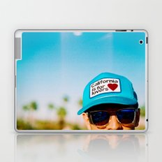 California is for Lovers Laptop & iPad Skin