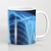 medical Mugs featuring x ray medical radiography by tony tudor