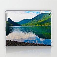Pristine Laptop & iPad Skin