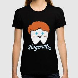 gingervitis