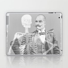 Crown Pursuit -- Black and White Variant Laptop & iPad Skin