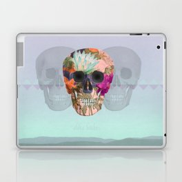 Aloha Bitches Laptop & iPad Skin