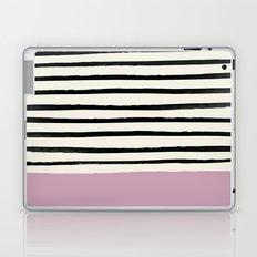Dusty Rose & Stripes Laptop & iPad Skin