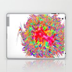 A Bundle of Fun Laptop & iPad Skin