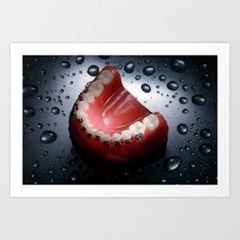 Dental braces Art Print