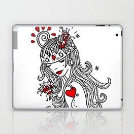 Crown of Pain - An Introduction - Zine Laptop & iPad Skin