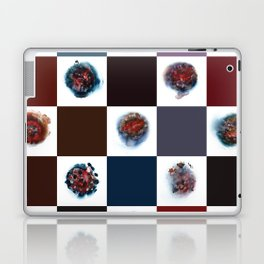 Rose City Monster's Nipple Quilt Laptop & iPad Skin