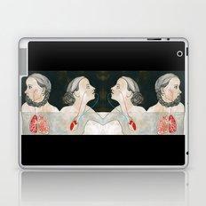 ikizler (twins) Laptop & iPad Skin