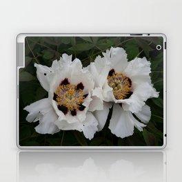 Beautiful Twins Laptop & iPad Skin