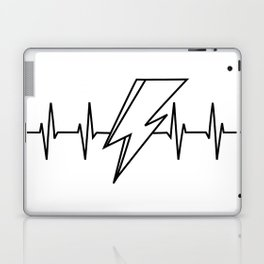Bowie Heartbeat Laptop & iPad Skin