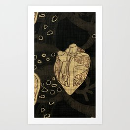 Coronary Contemporary 6 Art Print