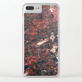 Natural Scar Clear iPhone Case
