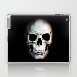 Irish Skull Laptop & iPad Skin