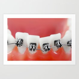 Dental braces Art Print