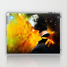 Burning Up Laptop & iPad Skin
