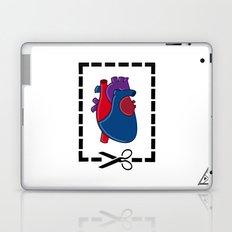 Cut My Heart Laptop & iPad Skin