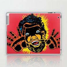 Devolve Laptop & iPad Skin
