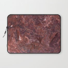 Love At First Sight Laptop Sleeve