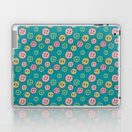 Pattern Project #31 / Buttons Laptop & iPad Skin