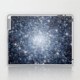 Globular Cluster Laptop & iPad Skin