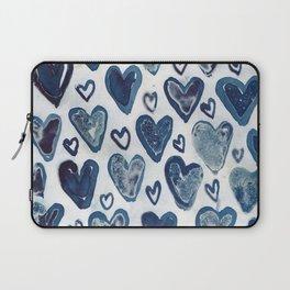 Hearts aplenty. Laptop Sleeve