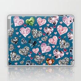 Heart Diamonds are Forever Love Blue Laptop & iPad Skin