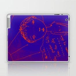 The Blue Itch Laptop & iPad Skin