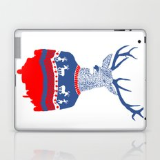 Ugly winter pulover Laptop & iPad Skin