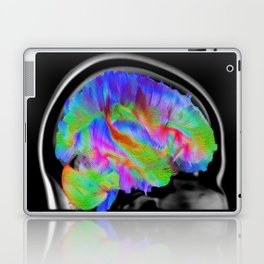Brains in Color Laptop & iPad Skin