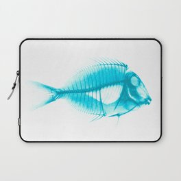 X-Ray Tang Laptop Sleeve