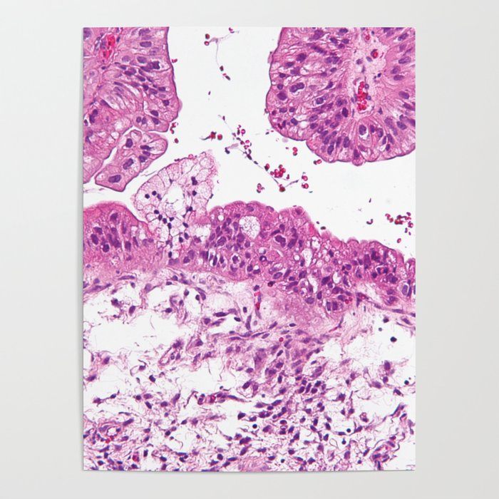 Ovarian Cancer Poster By Jani87 Society6