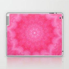 Sugar Treat Laptop & iPad Skin