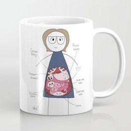 Imaginary Anatomy Coffee Mug