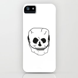 Skull with braces iPhone Case