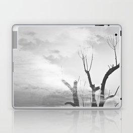 como duele, esta melancolía de domingo. Laptop & iPad Skin