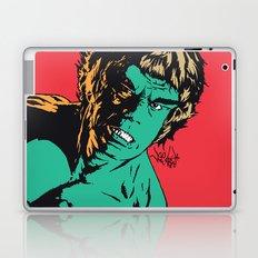 See Me Angry Laptop & iPad Skin