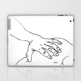 Those touching Laptop & iPad Skin
