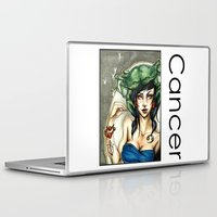 cancer Laptop & iPad Skins featuring Cancer by TammyWitzens