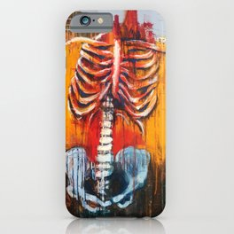 Syndrome iPhone Case