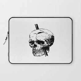 Skull of Phineas Gage With Tamping Iron Laptop Sleeve
