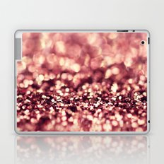 A Girl Loves Pink - an abstract photograph Laptop & iPad Skin