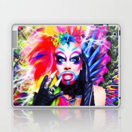 Glitz Glam Pride All Ovah Fx  Laptop & iPad Skin