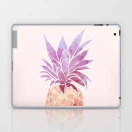 JUICY Pineapple Laptop & iPad Skin