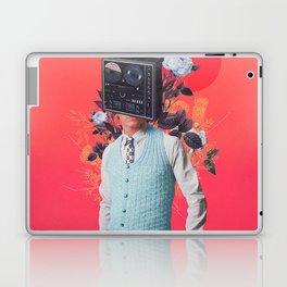 Phonohead Laptop & iPad Skin
