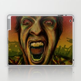 We hungry Laptop & iPad Skin