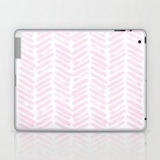 Handpainted Chevron pattern light pink stripes Laptop & iPad Skin