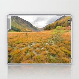 Autumn in Glendalough Laptop & iPad Skin