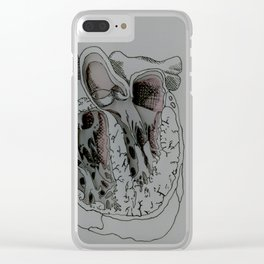 Caution: Fragile Clear iPhone Case