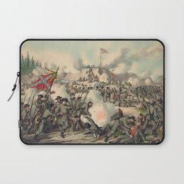 Civil War Assault on Fort Sanders Nov. 29 1863 Laptop Sleeve