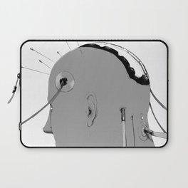 Cybernetic Coma Laptop Sleeve